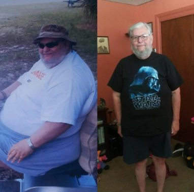 bill-before-after